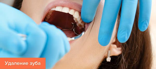 Что пить после удаления зуба при воспалении