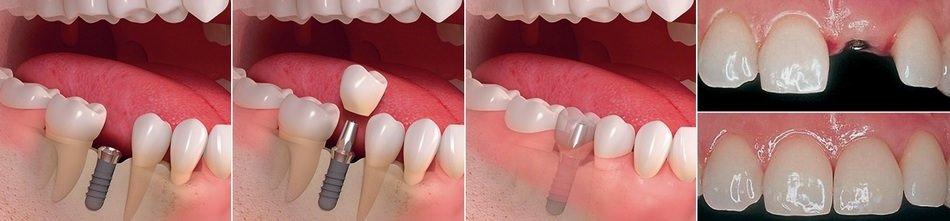Что же такое зубной имплантат фото