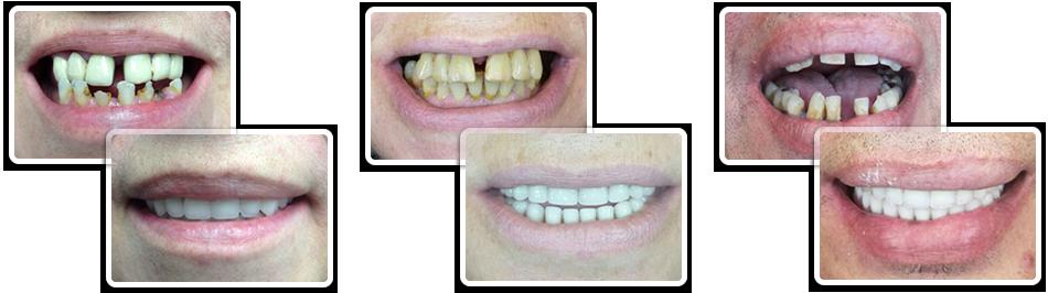 Имплантация зубов До и После фото