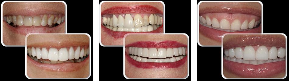Зубы после виниров отзывы